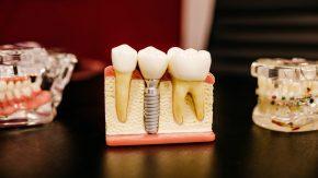 Zeinali & Mir Jafari Dental